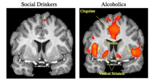 What is craving? Part 1- Neurobiological Accounts.
