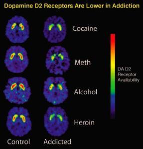 Dopamine_receptors