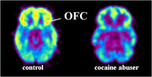 OFC defict in addiction